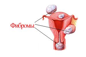 картинки женские наружные половые органы