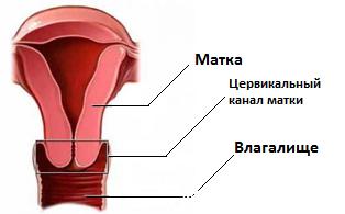 Цервикальный канал расширен при беременности до 3 мм